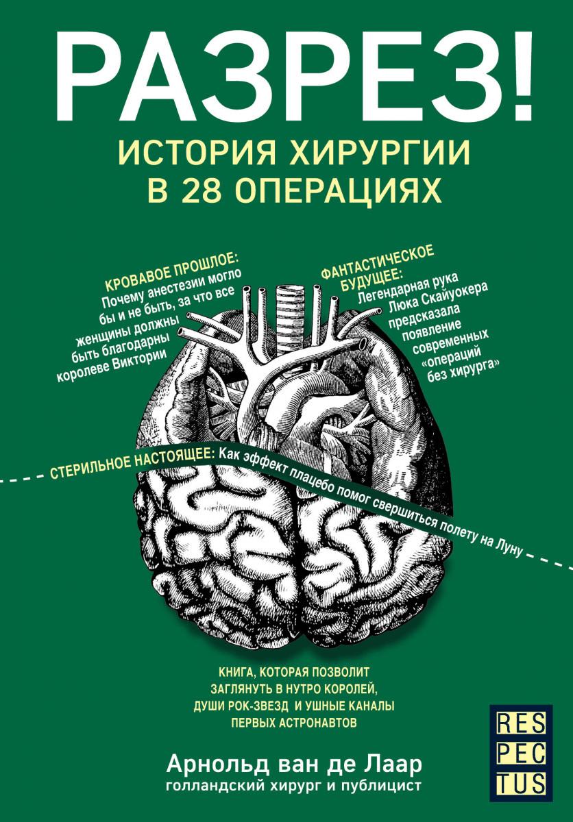 Разрез! История хирургии в 28 операциях. Автор — Арнольд Ван Де Лаар. Переплет —