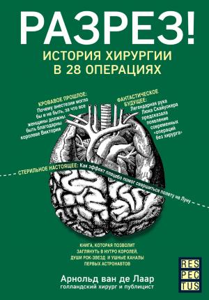 Разрез! История хирургии в 28 операциях. Автор — Арнольд Ван Де Лаар. Обложка —